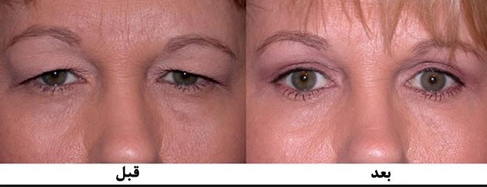 درمان افتادگی پلک با جراحی بهتر است یا داروی گیاهی؟
