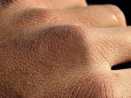 کرونا و خشکی پوست – ایسنا