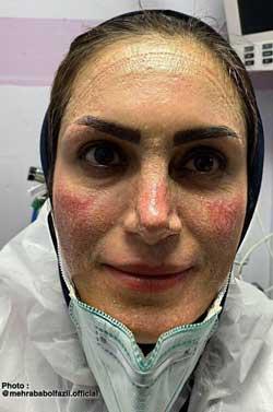 مهاجرت سه هزار پزشک ایرانی در دوران کرونا