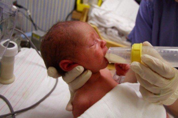 تاثیر تغذیه با شیر مادر بر کاهش مشکلات نوزادان نارس