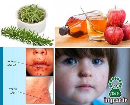 گیاهان دارویی موثر در درمان بیماری زرد زخم
